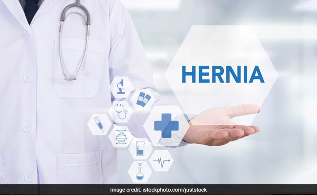 Know All About The Different Kinds Of Hernia And How To Deal With Them