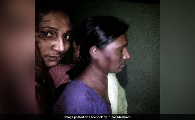 Maharashtra Woman Fought Off Big Cat With A Stick. Then Took A Selfie