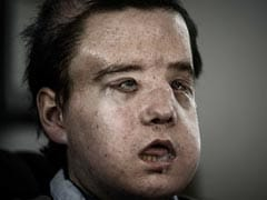 ''The Man With Three Faces'' Has Second Transplant