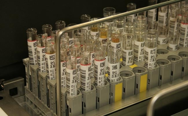 Japan To Trial ''World's First Urine Test'' To Spot Cancer