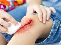 Top Home Remedies For Minor Cuts You Must Know