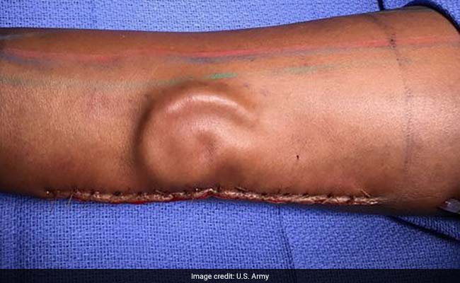 A Soldier Needed An Ear Transplant. Doctors 'Grew' A New One In Her Arm