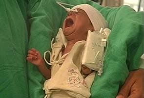 Damini, rickshaw puller's baby, discharged from hospital