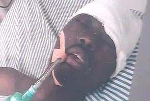 African student, beaten and left to die in Jalandhar, comes out of coma after 9 months