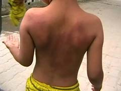 Ghaziabad: 6-Year-Old Allegedly Beaten by Teacher For Not Doing Homework