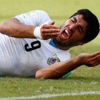 FIFA 2014: 10 Funniest Tweets by Food Brands About Suarez's Bite