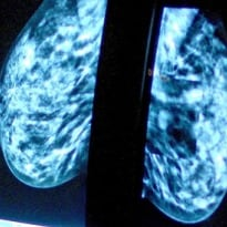 Breast Cancer Drug Perjeta Could Extend Patients' Lives by 15 Months - Study