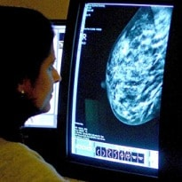 Double Mastectomy for Breast Cancer 'Does not Boost Survival Chances'