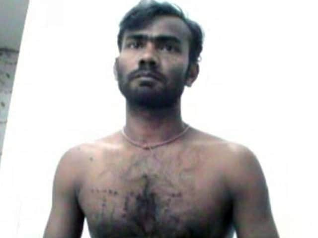 Video : BJP Worker Burned With Cigarette Butts for 'Attending Amit Shah's Kolkata Rally'