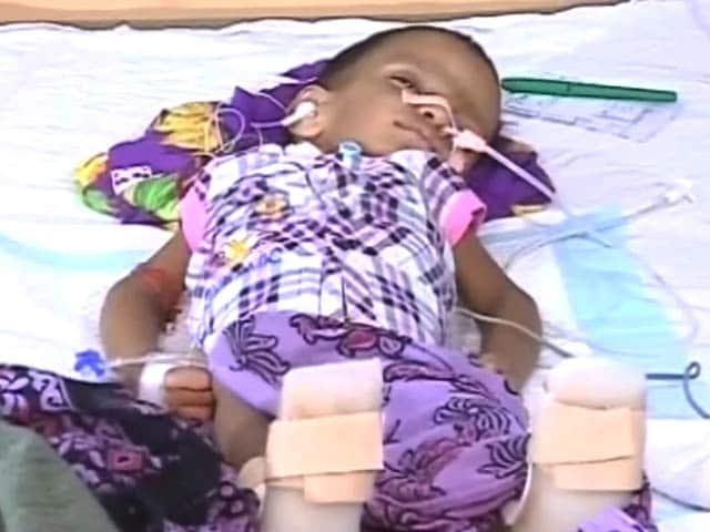 Video : मां की लोरी सुनकर कोमा से बाहर आया बच्चा