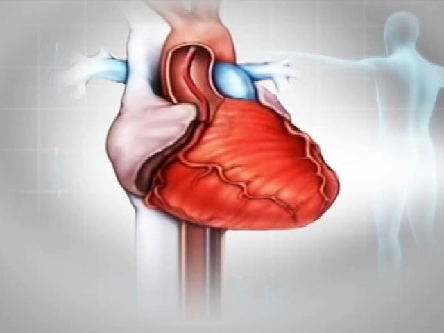 Video : Understanding the Basics About Heart Stents