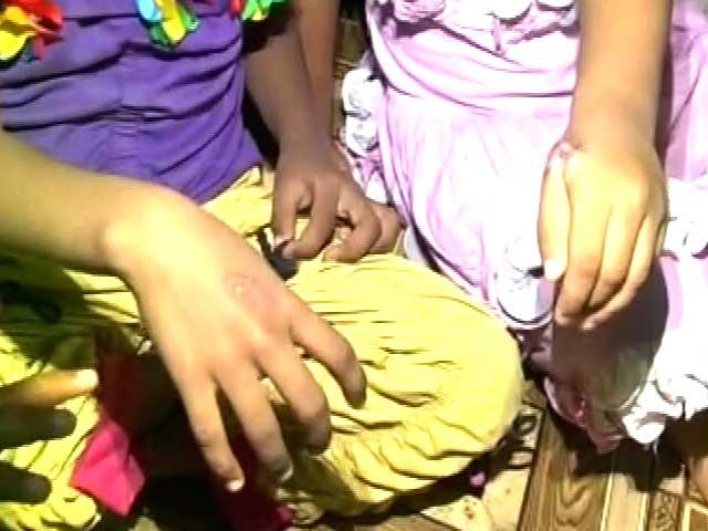 Videos : कैमरे में कैद : तेलंगाना के केयर होम में अनाथ बच्चों को गर्म चम्मच से दागा
