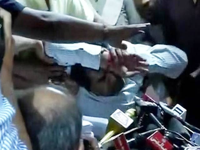 Video : Sacked AAP Minister Kapil Mishra Faints During Press Conference