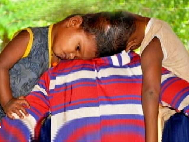 Video : जन्म से सिर से जुड़े ओडिशा के जुड़वां बच्चे ऑपरेशन के लिए एम्स में भर्ती