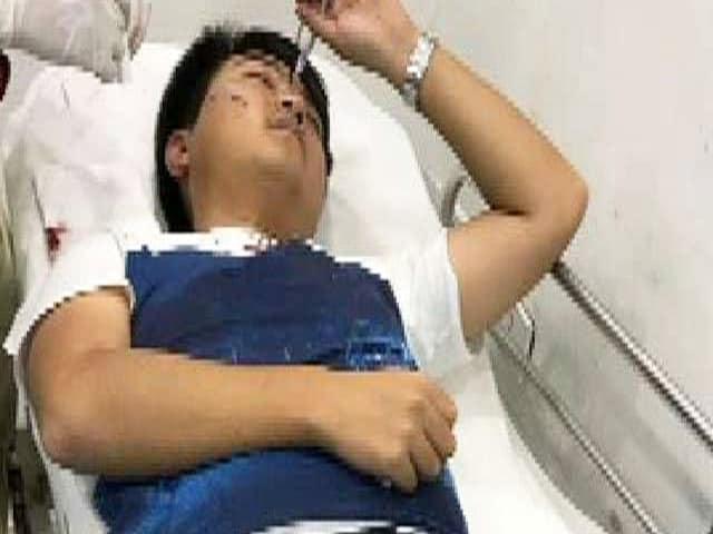 Video : बेंगलुरु में लूट के लिए एक चीनी नागरिक पर चाकू से हमला