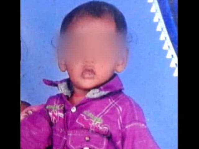 Video : 4-Year-Old Boy Mauled By Stray Dogs Dies In Andhra Pradesh's Guntur