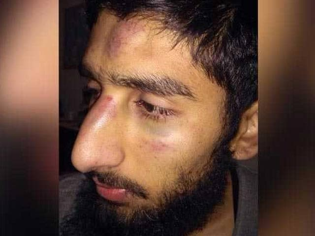 Video : 3 Arrested After Kashmiri Students Allegedly Thrashed In Haryana