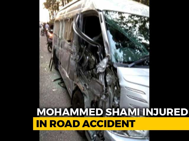Video : Mohammed Shami Involved In Road Accident, Suffers Head Injury