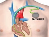 Video : All About Artificial Cardiac Pacemaker