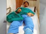 Video : अस्पताल की लापरवाही, दाएं पैर के बजाय बाएं पैर का ऑपरेशन किया