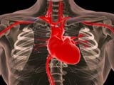 Heart Disease Treatment Protocol That Reduces Heart Attack Mortality