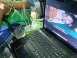 Video : Patient Watches <i>Baahubali</i> As Guntur Doctors Perform Brain Surgery